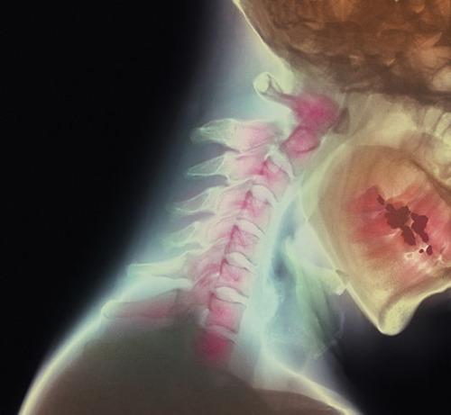 Broken neck